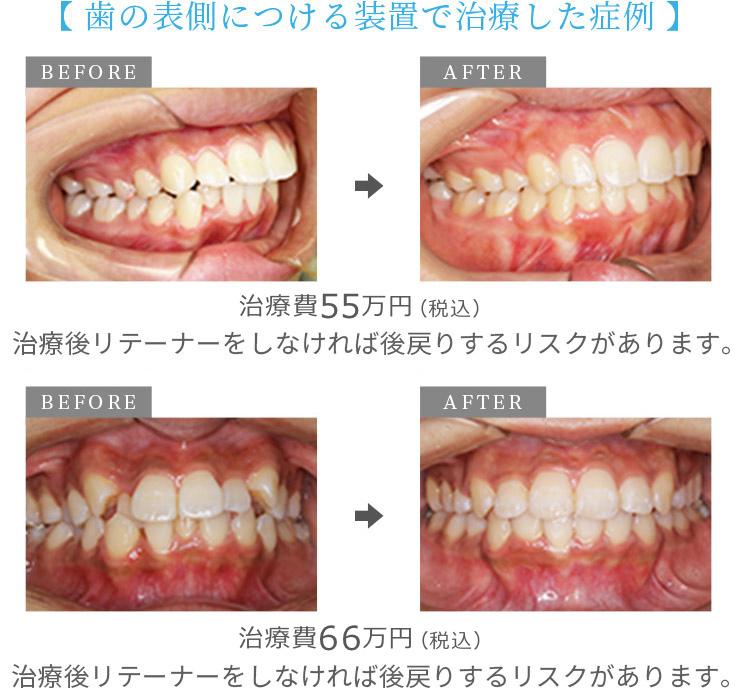 歯の表側につける装置で治療した症例