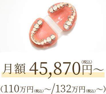 月額41,700円(100万円~/120万円~)