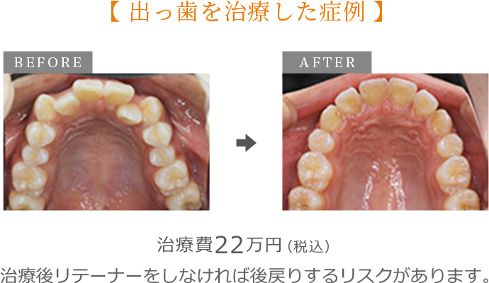 出っ歯の治療症例